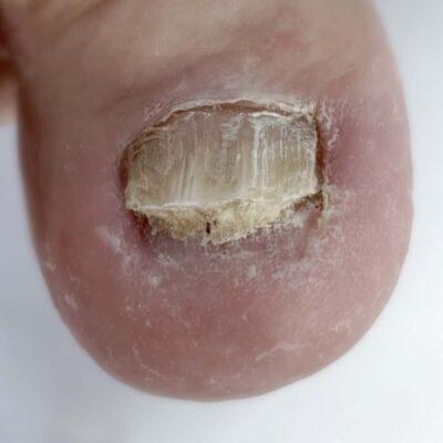 psoriasi ungueale piede