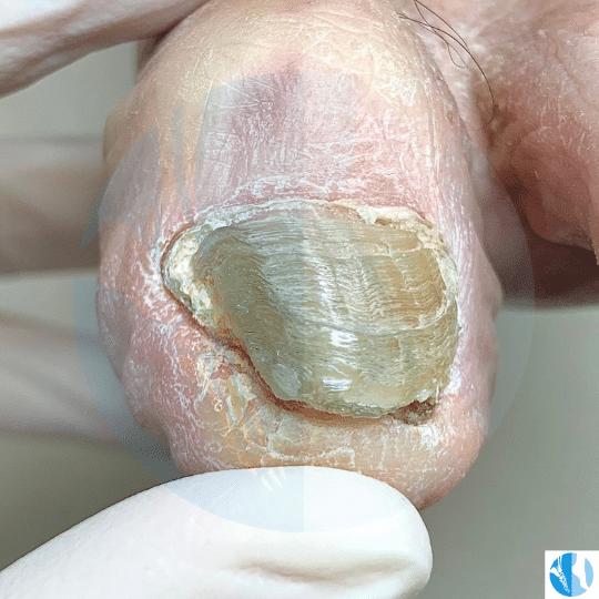 onicodistrofia onicogrifosi